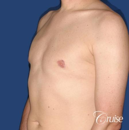 moderate gynecomastia on adult donut lift -  After Image 3