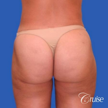best liposuction abdomen flanks medial and lateral thighs dramatic -  After Image 3