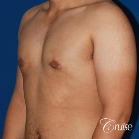 puffy nipple male breast on young adult -  After Image 3