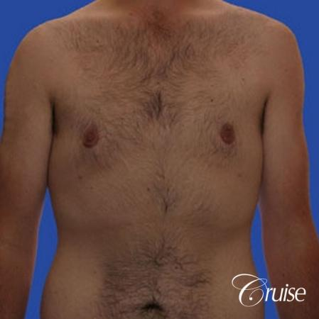 weight loss patient with gynecomastia -  After Image 1