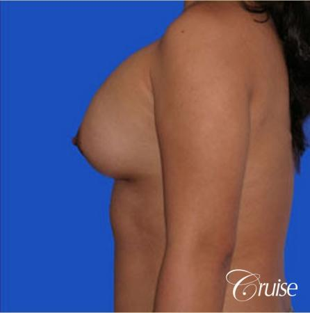 left breast capsular contracture before and after photos - Before and After Image 2