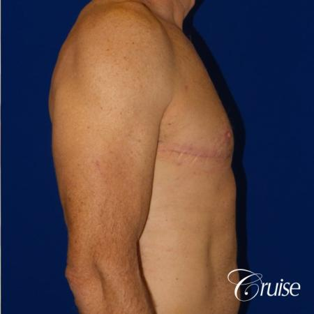 Top Gynecomastia surgeons -  After Image 4