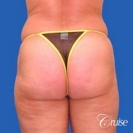best liposuction abdomen, flanks and thighs -  After Image 3