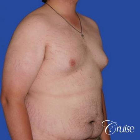 weight loss patient with gynecomastia - Before and After Image 3