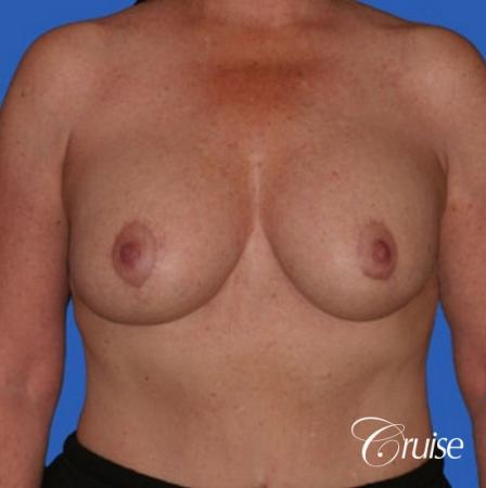 best breast lift anchor with saline augmentation -  After Image 1