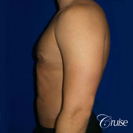 Moderate Gynecomastia -Puffy Nipple -Areola Incision - After Image 3
