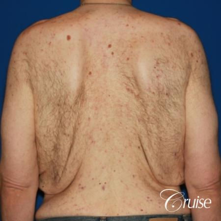 severe weight loss gynecomastia upper body lift - Before Image 4