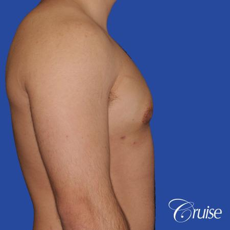 mild case of gynecomastia on adult - After Image 3