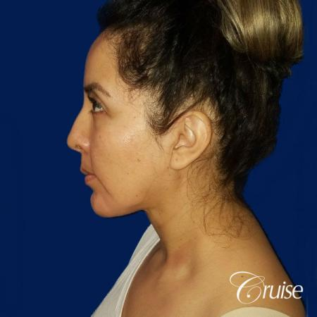 Liposuction of Neck/Jawline - After Image 2