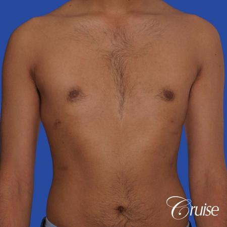 best before and after results for gynecomastia surgery -  After Image 1