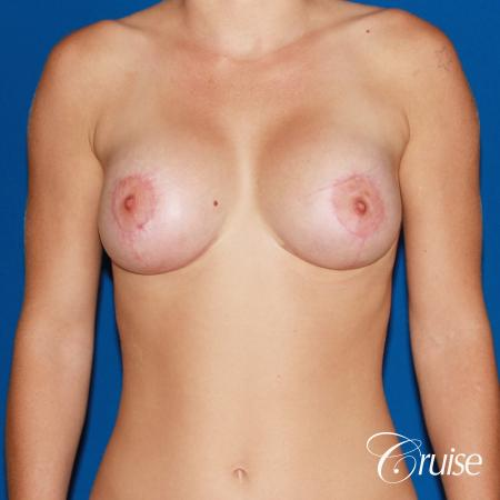 best pictures of young patients with silicone breast lift anchor -  After Image 1