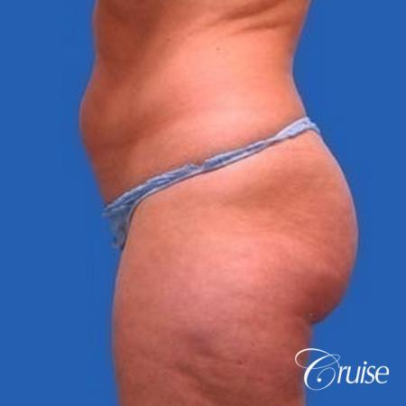best liposuction abdomen, flanks and thighs - Before Image 2