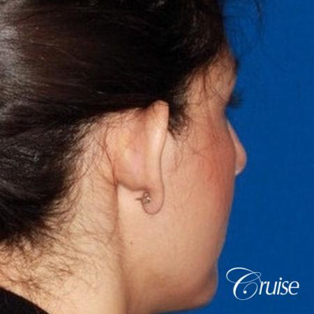 best otoplasty with natural appearance on female - Before Image 3