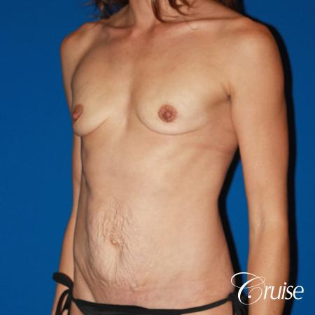 best ultra low tummy tuck scar with breast augmentation - Before Image 3