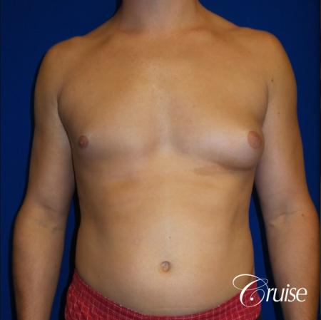 Unilateral gynecomastia condition photos - Before Image 1
