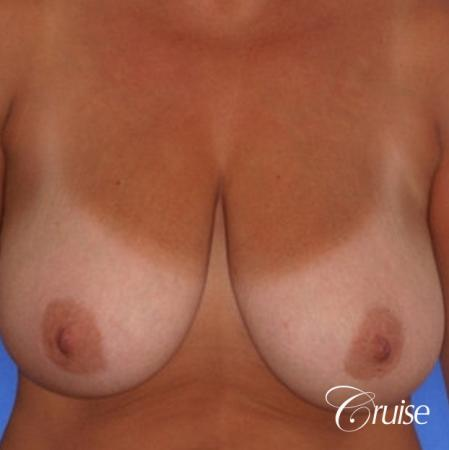 best breast lift and reduction with plastic surgeon in Newport Beach - Before Image 1