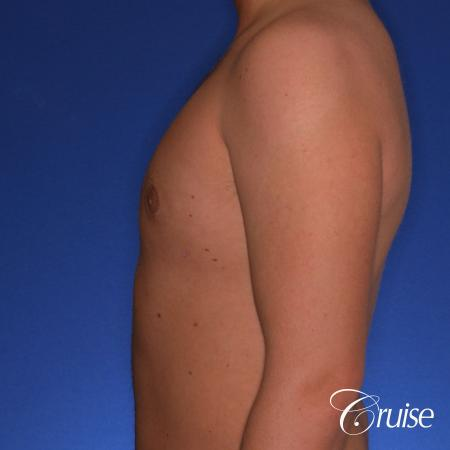 best puffy nipple gynecomastia results with plastic surgeon, Joseph Cruise, M.D. -  After Image 2