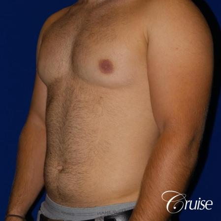 best gynecomastia results - Before Image 2