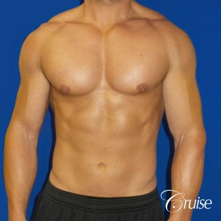 Gynecomastia puffy nipples cost - After Image
