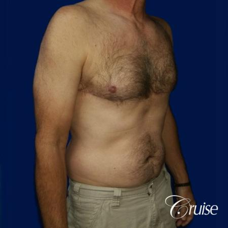 Moderate Gynecomastia Pedicle - After Image 4