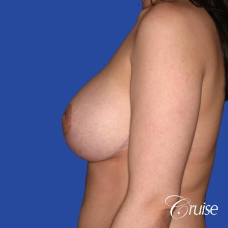 young woman who had best results for breast lift with saline implants -  After Image 2