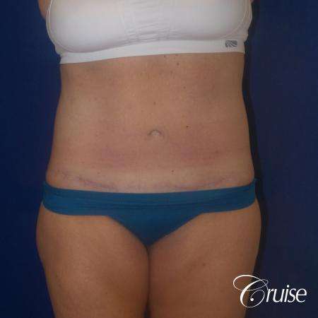 Circumferential Tummy Tuck w/BBL - After