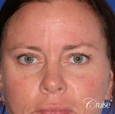 female temple lift and upper eyelid surgery - After Image