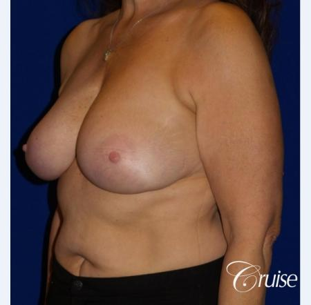 Breast Reduction - No Implants - Before Image 3