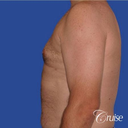 chest liposuction on adult -  After Image 2