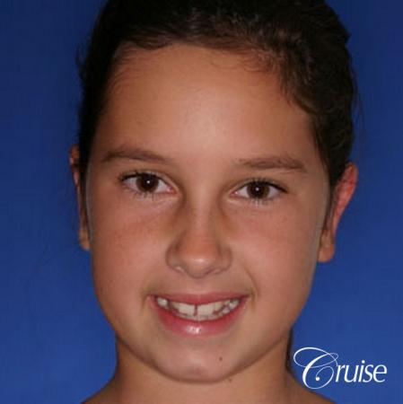 best otoplasty pictures on adolescent child teen - After Image