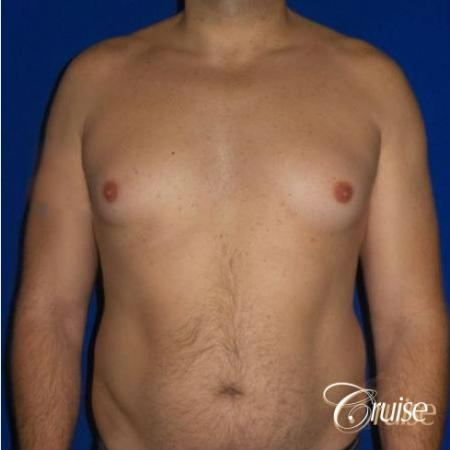 male breast reduction surgery - Before Image 1