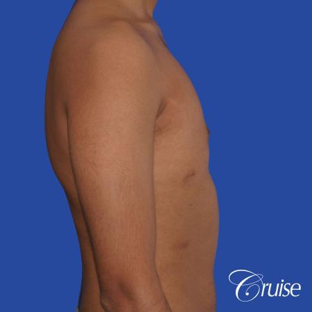 best before and after results for gynecomastia surgery -  After Image 3