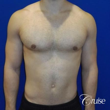 Mild Gynecomastia Puffy Nipple Areola Incision - After Image