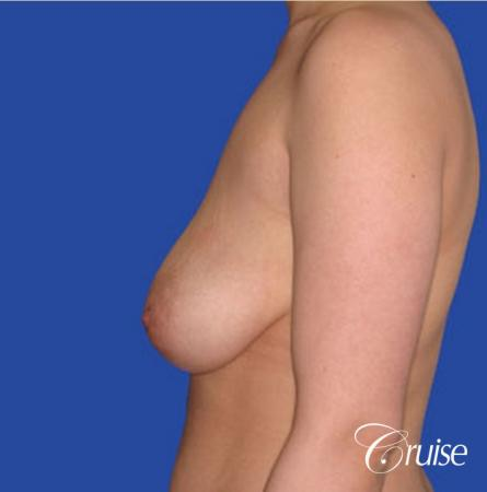 best round saline implants after breast reduction - Before 2