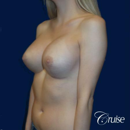 Breast Lift before and after Orange County -  After Image 3