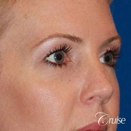 best upper eye lid results - Before Image 2