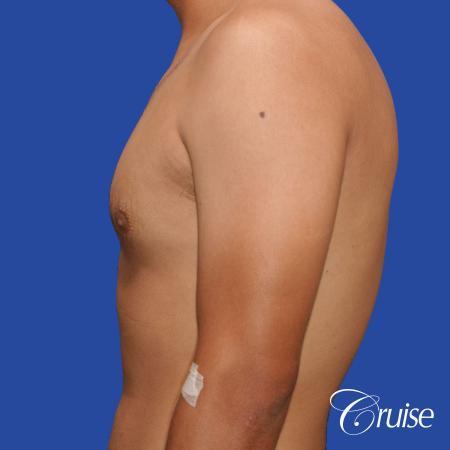 mild gynecomastia standard PA areola incision - Before Image 2