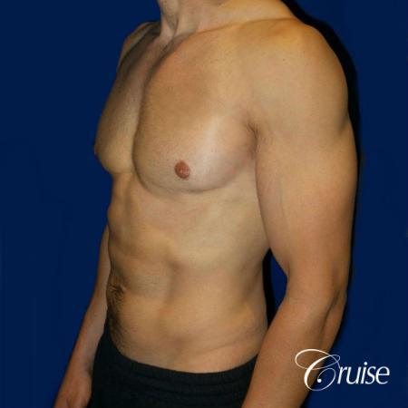 Moderate Gynecomastia -Pedicle - After Image 3