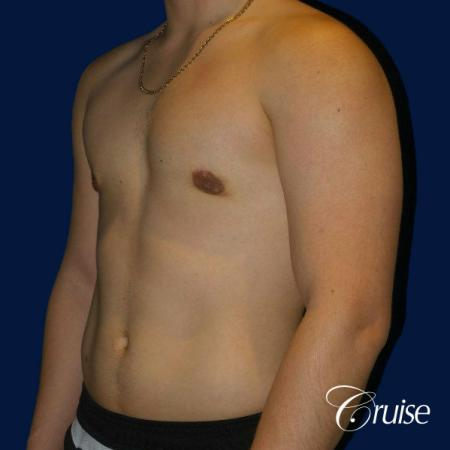 Best Gynecomastia surgeons Southern California -  After Image 3