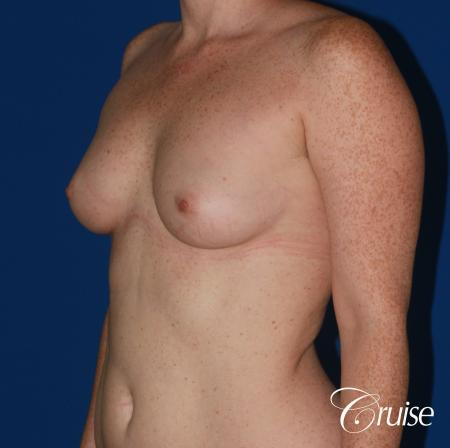 Breast Augmentation - Before and After 3