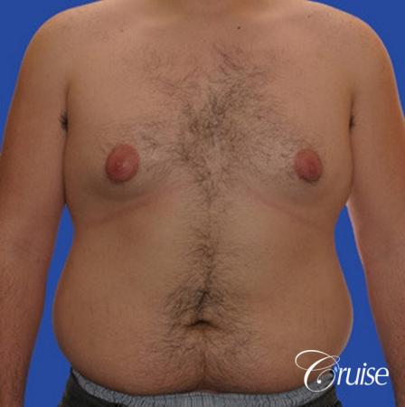 male liposuction abdomen flanks with Gynecomastia - Before Image 1