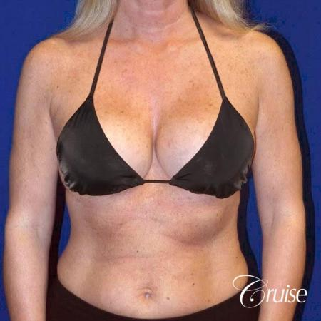 best breast lift with implants - After Image 5