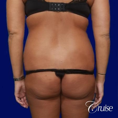 Liposuction Abdomen and Flanks with Midline Contour - Before and After Image 4