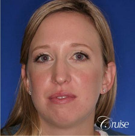 best plastic surgeon for chin augmentation implant - Before Image
