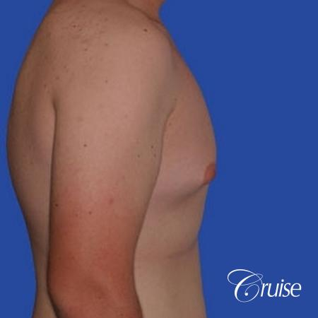mild gynecomastia with puffy nipple from puberty - Before and After Image 2