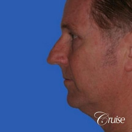 52 yr old male with medium square chin implant - Before Image 2