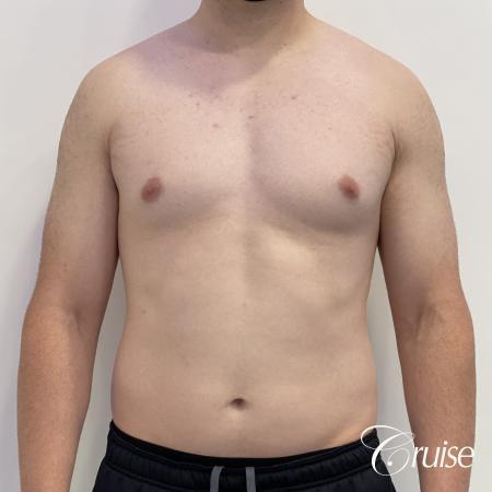 Gynecomastia: Patient 123 - Before 1