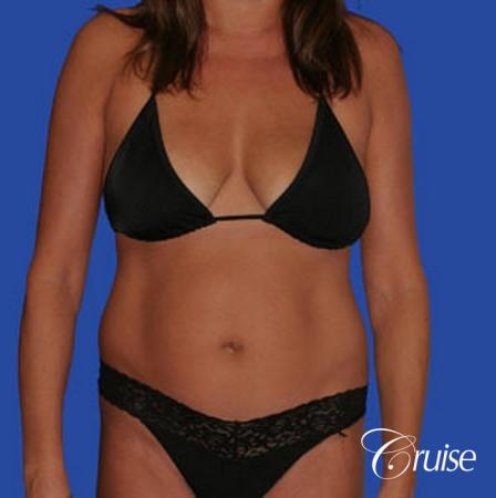 mommy makeover with best breast lift anchor with saline implants - Before Image 4