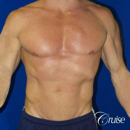 Body builder gynecomastia before and after pictures -  After Image 1