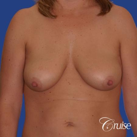 best breast lift anchor with silicone implants on 40 year old woman - Before Image 1